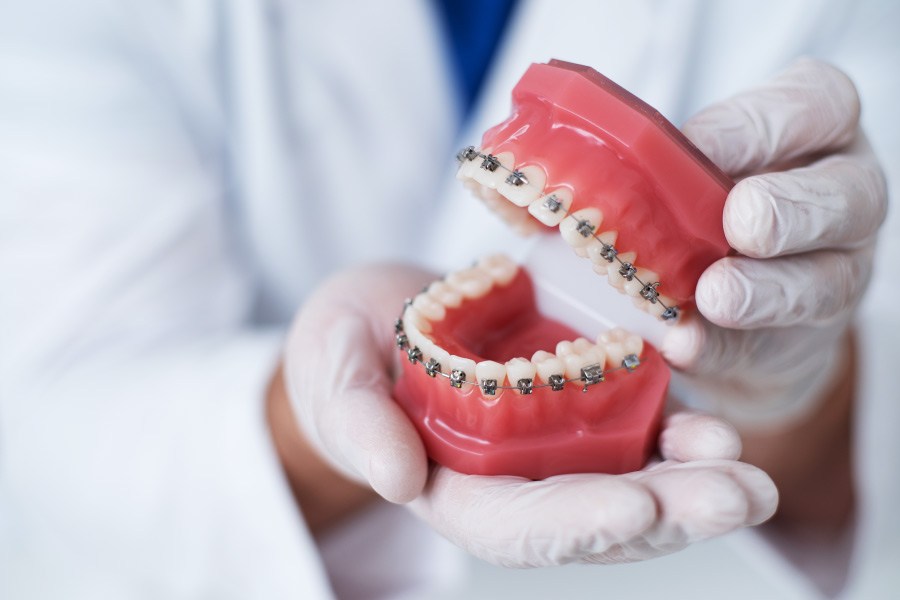 An orthodontist holds a mouth model with teeth that have braces in Lytle, TX